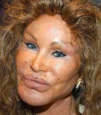 Botox_2
